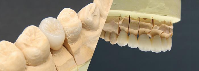 審美歯科(メタルフリー治療)
