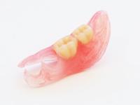 金具の無い部分入れ歯