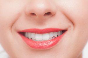 虫歯・歯周病予防できるプロのクリーニング