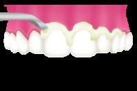 歯石を除去(スケーリング)
