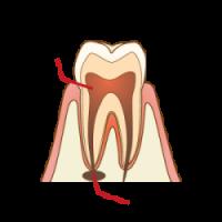 根管治療:根の先にたまった膿